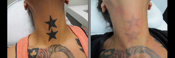 Before & After Photos for Tattoo Removal | Clear Out Ink Las Vegas